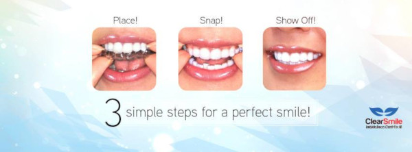 3 basic steps in application of aligners; Place, Snap and Show Off!
