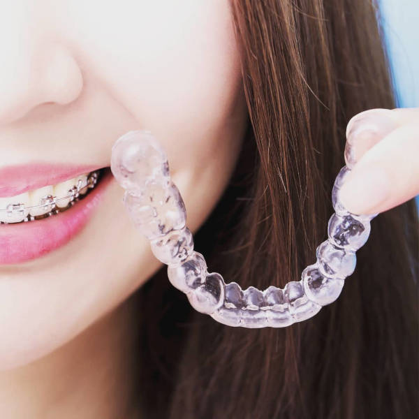 The Clearsmile Invisible Aligners